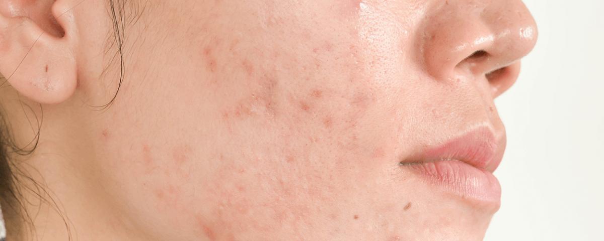 tratamento de acne